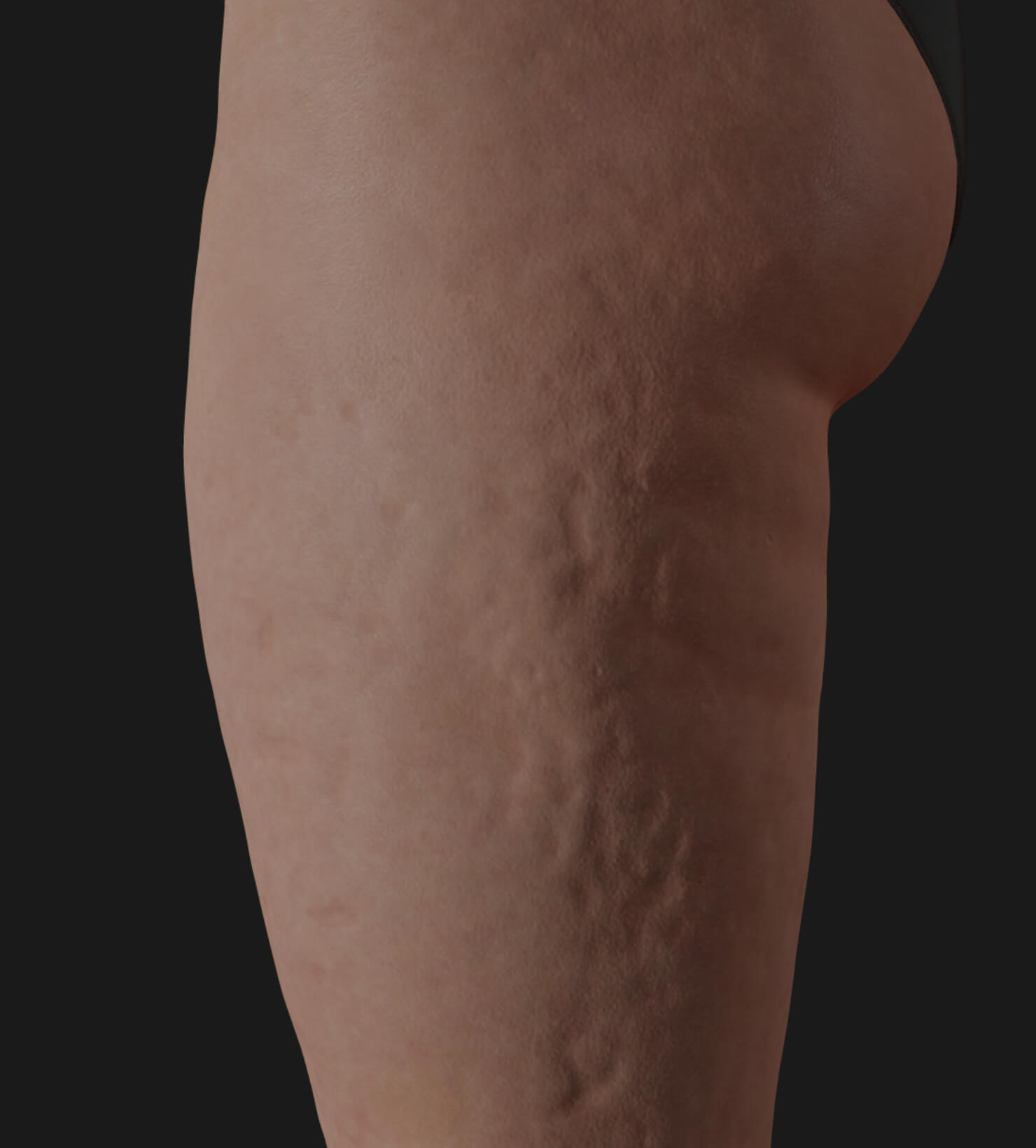 Side thighs of a Clinique Chloé patient showing cellulite, to be treated with Tight Sculpting laser for cellulite reduction