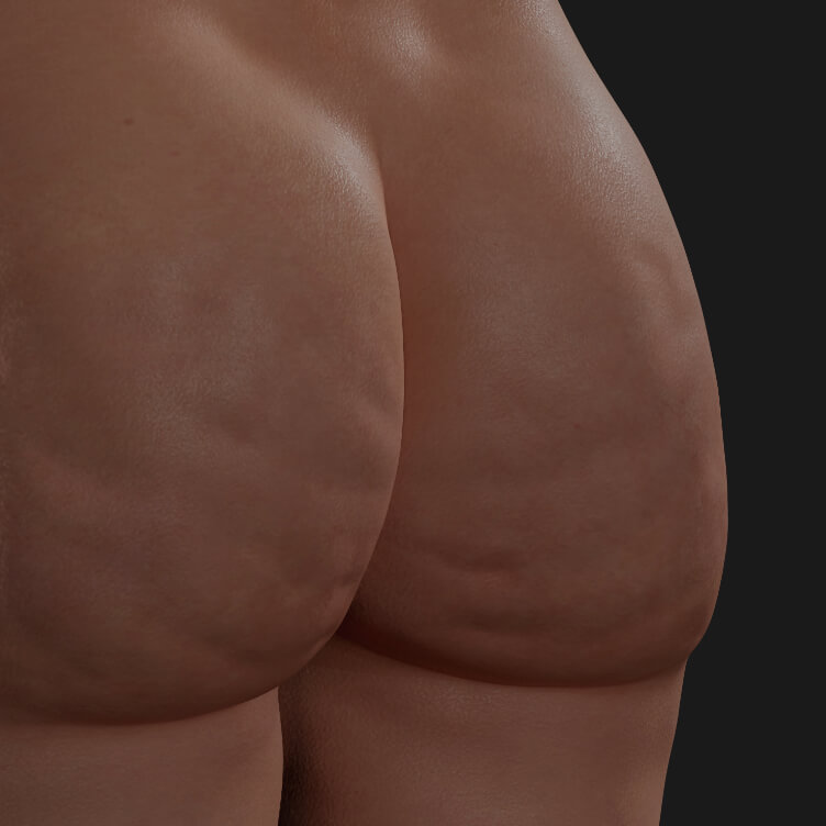 Buttocks of a Clinique Chloé patient showing cellulite, to be treated with Venus Legacy for cellulite reduction