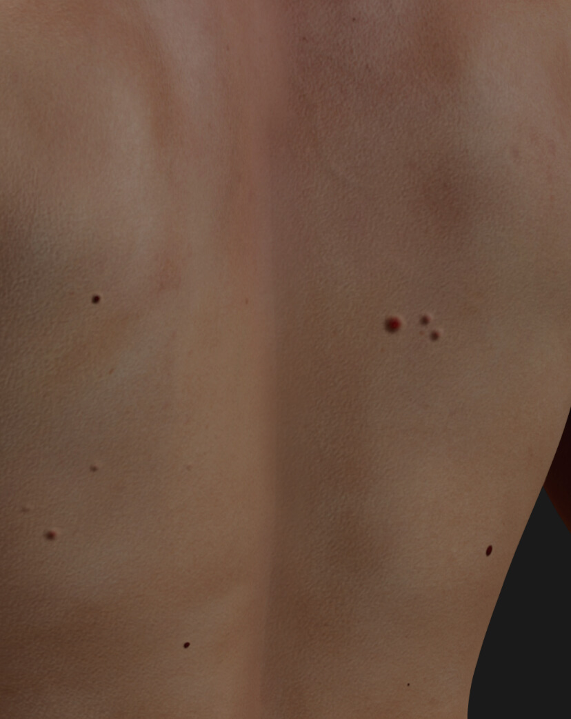 Back of a Clinique Chloé male patient showing multiple cherry angiomas to be treated with the Vbeam pulsed dye laser