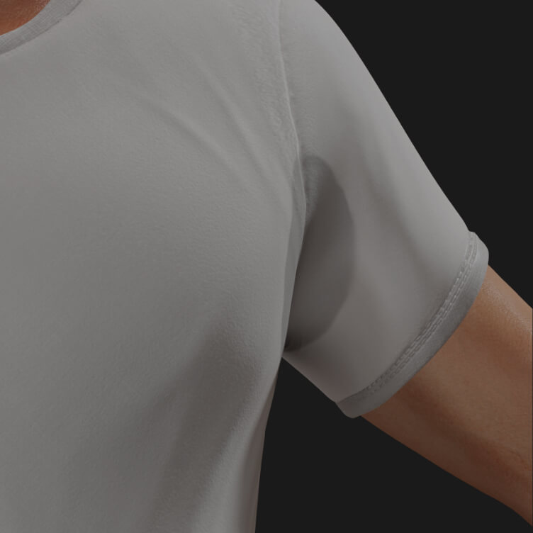 Clinique Chloé patient affected by excessive sweating, or hyperhidrosis, to be treated with injections of neuromodulators