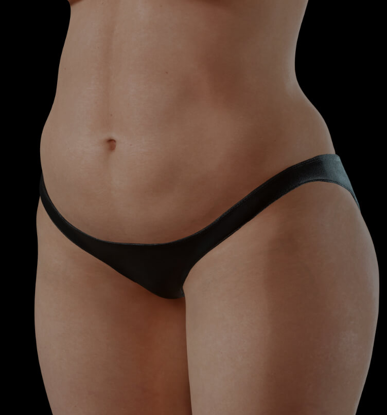 Female patient at Clinique Chloé with excess fat looking for body contouring
