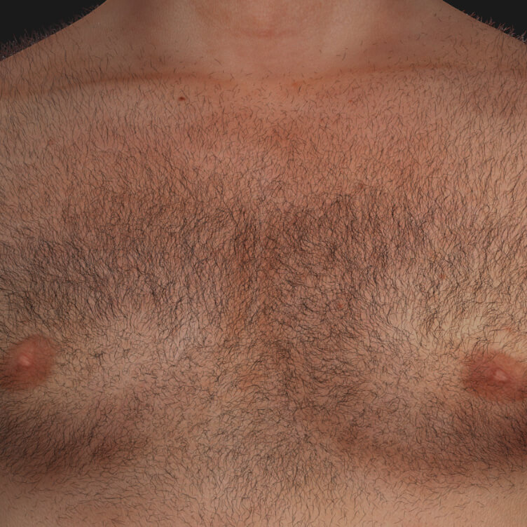 Chest of a Clinique Chloé male patient with unwanted hair to be treated with permanent laser hair removal