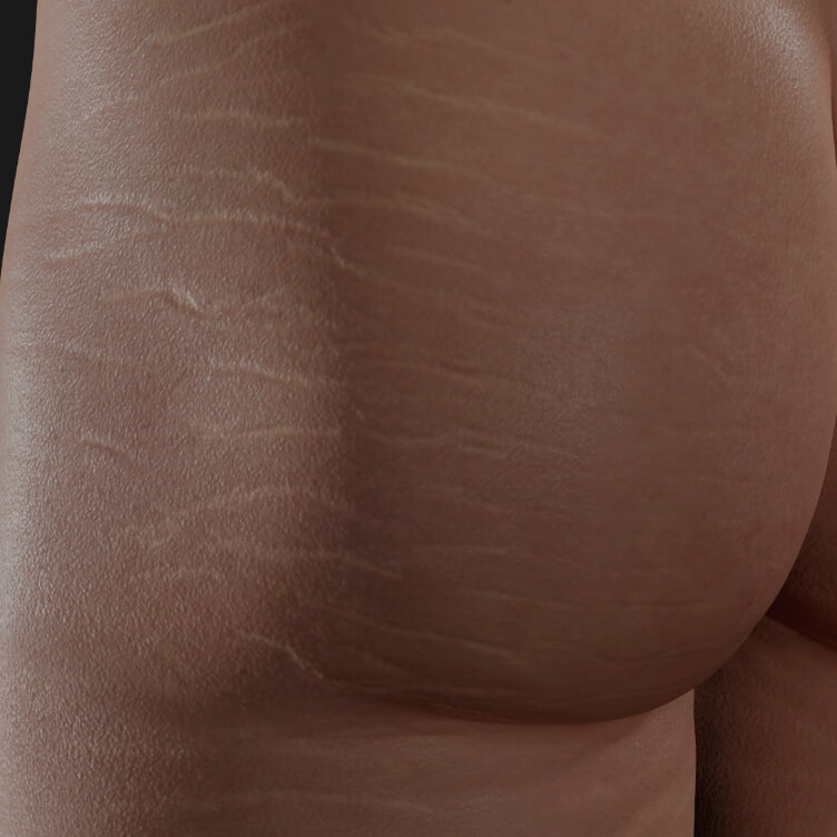 Buttocks of a Clinique Chloé female patient with stretch marks to be treated with platelet-rich plasma, or PRP