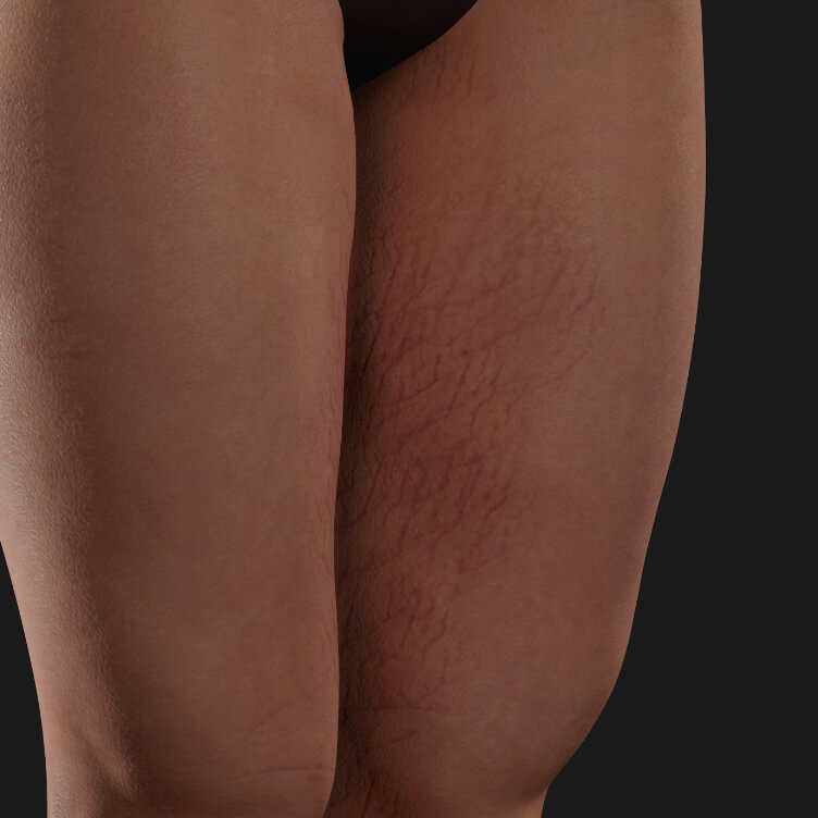 Thighs of a Clinique Chloé female patient with stretch marks to be treated with Venus Viva fractional radiofrequency