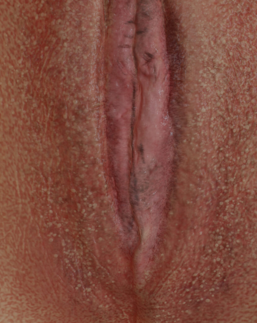 Clinique Chloé female patient with vaginal atrophy to be treated with dermal filler injections