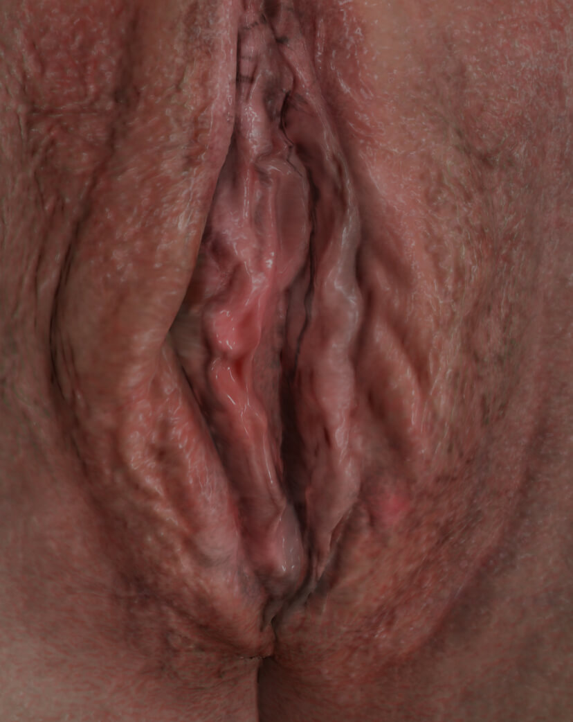 Clinique Chloé female patient with vaginal relaxation syndrome to be treated with IntimaLase laser for vaginal tightening