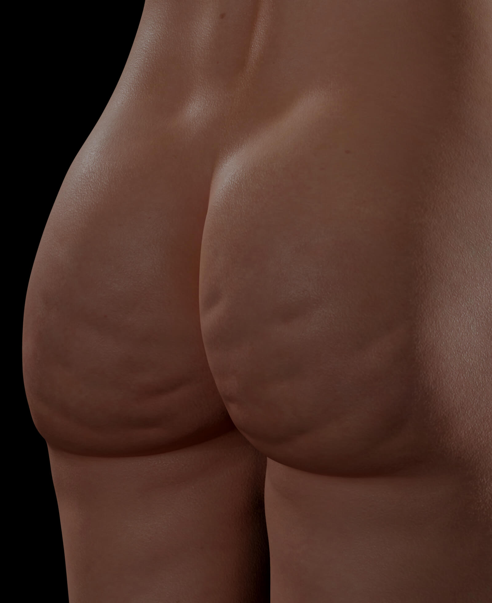 Female patient from Clinique Chloé with cellulite