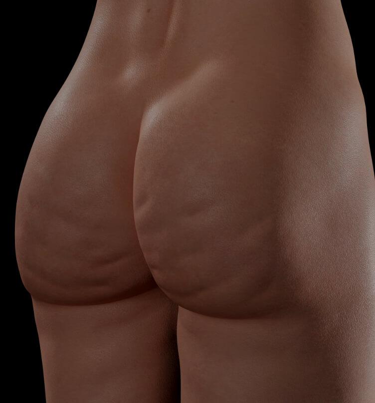 Patiente de la Clinique Chloé aux prises avec de la cellulite