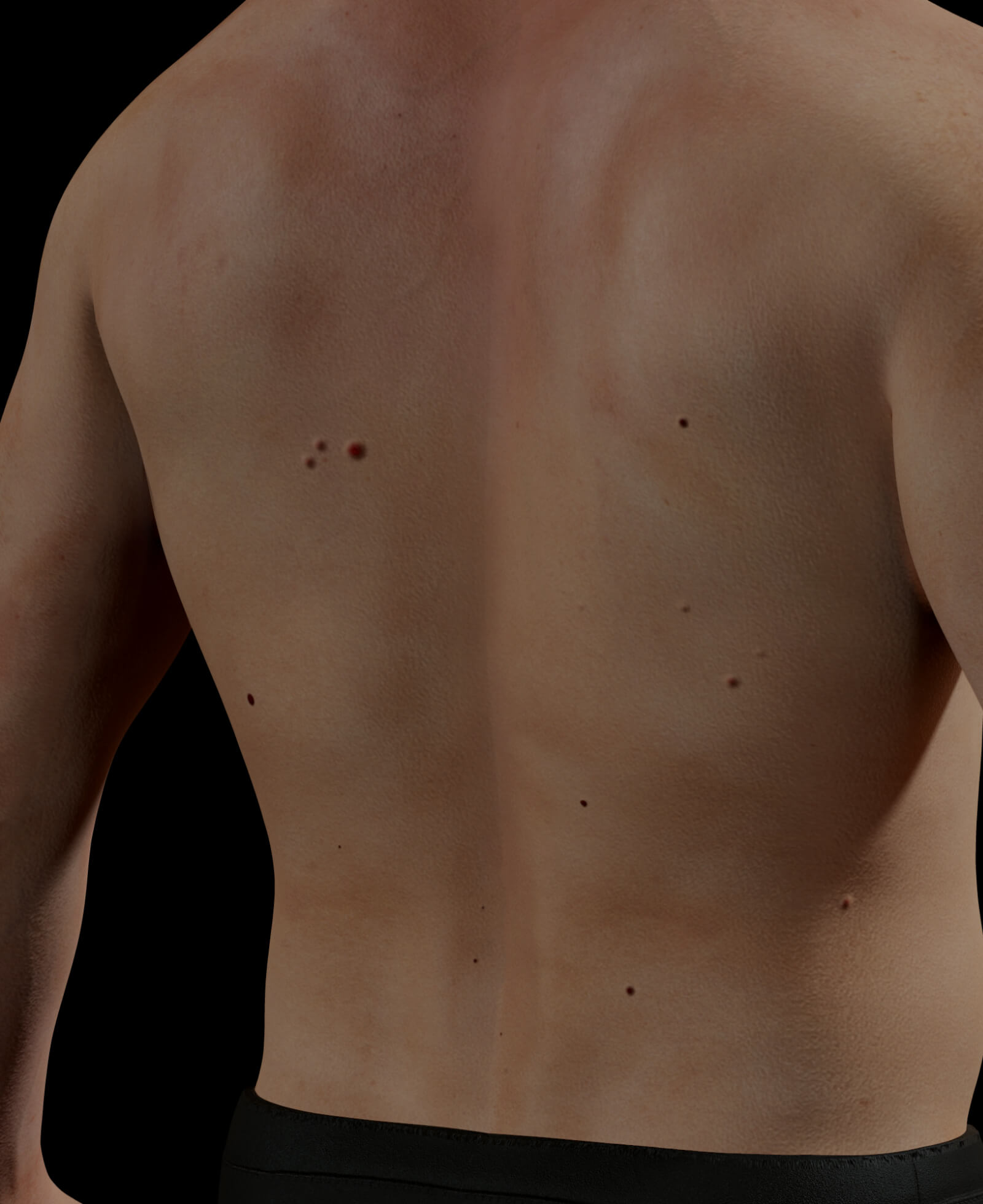 Clinique Chloé patient with cherry angiomas over his body
