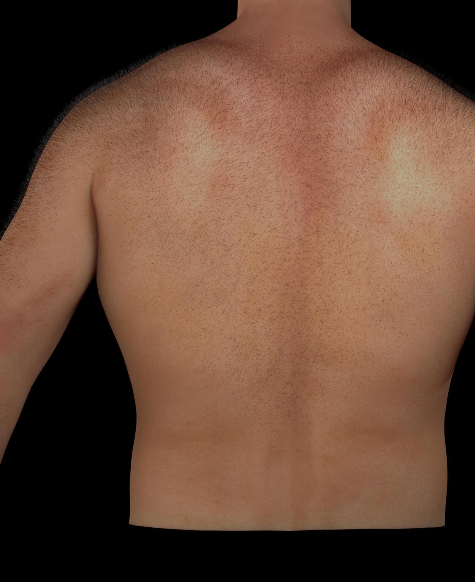 Patient de la Clinique Chloé ayant des poils indésirables dans le dos, nécessitant une épilation permanente