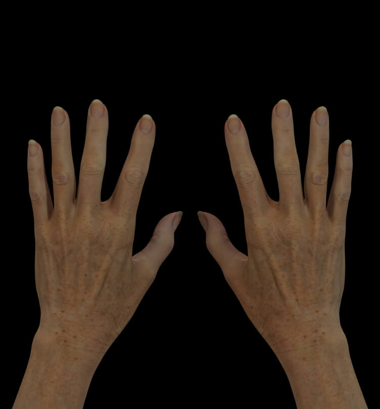 Patiente de la Clinique Chloé avec des mains vieillissantes