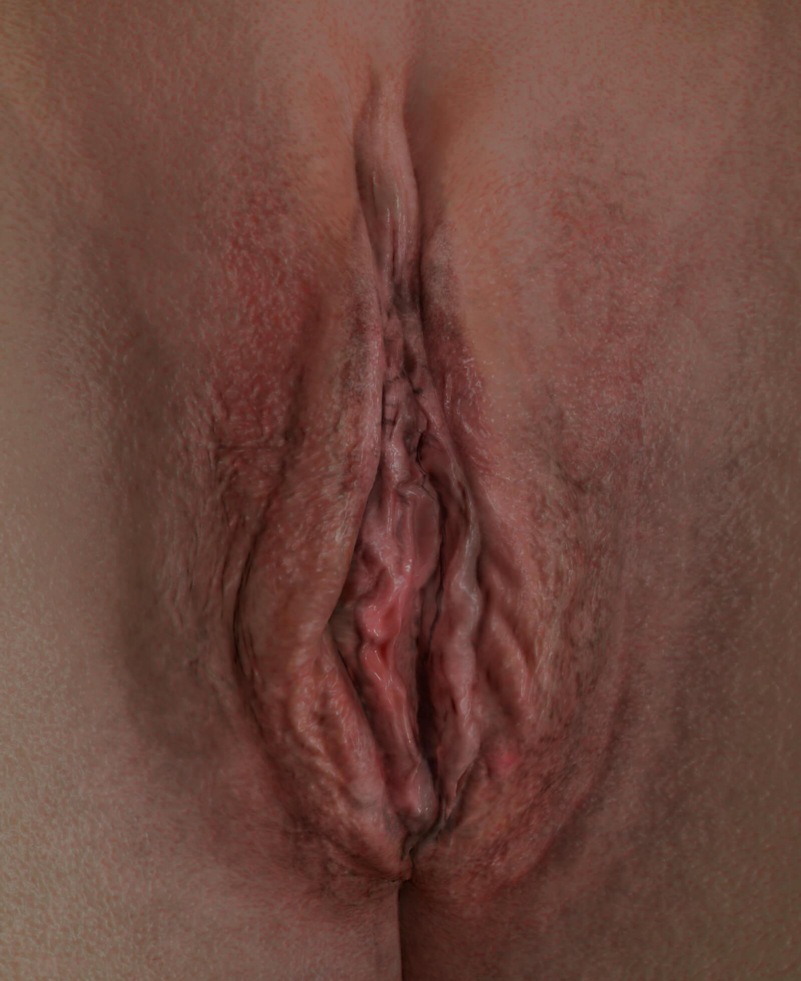 Vulve d'une patiente de la Clinique Chloé montrant un relâchement vaginal