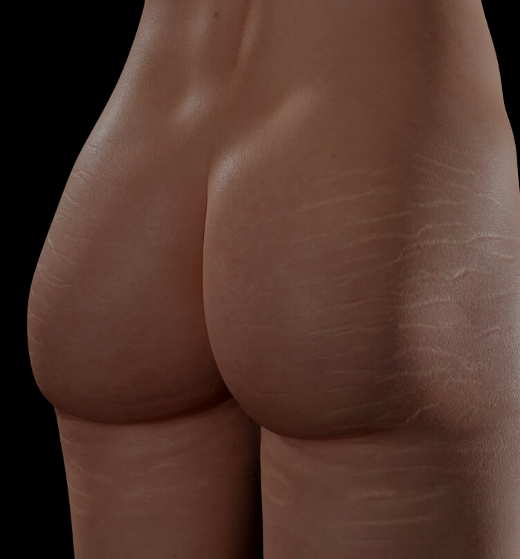 Clinique Chloé female patient with stretch marks