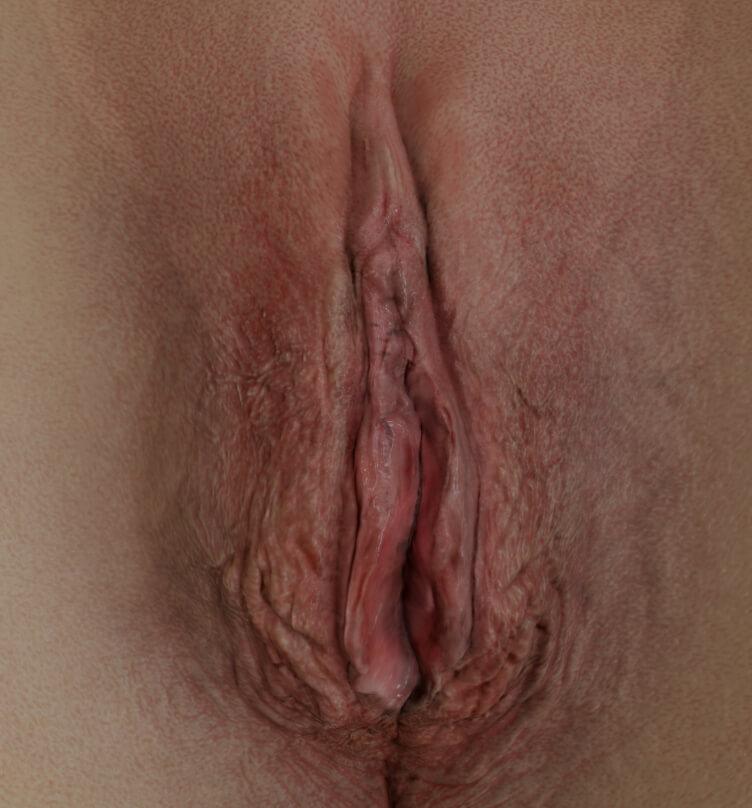Clinique Chloé female patient's vulva showing vaginal atrophy