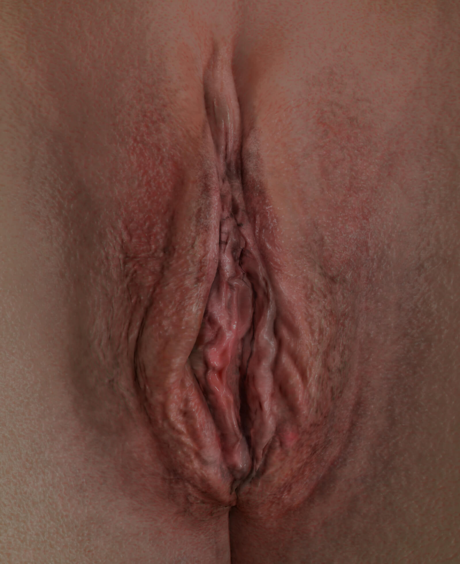 Clinique Chloé female patient's vulva showing signs of vaginal relaxation