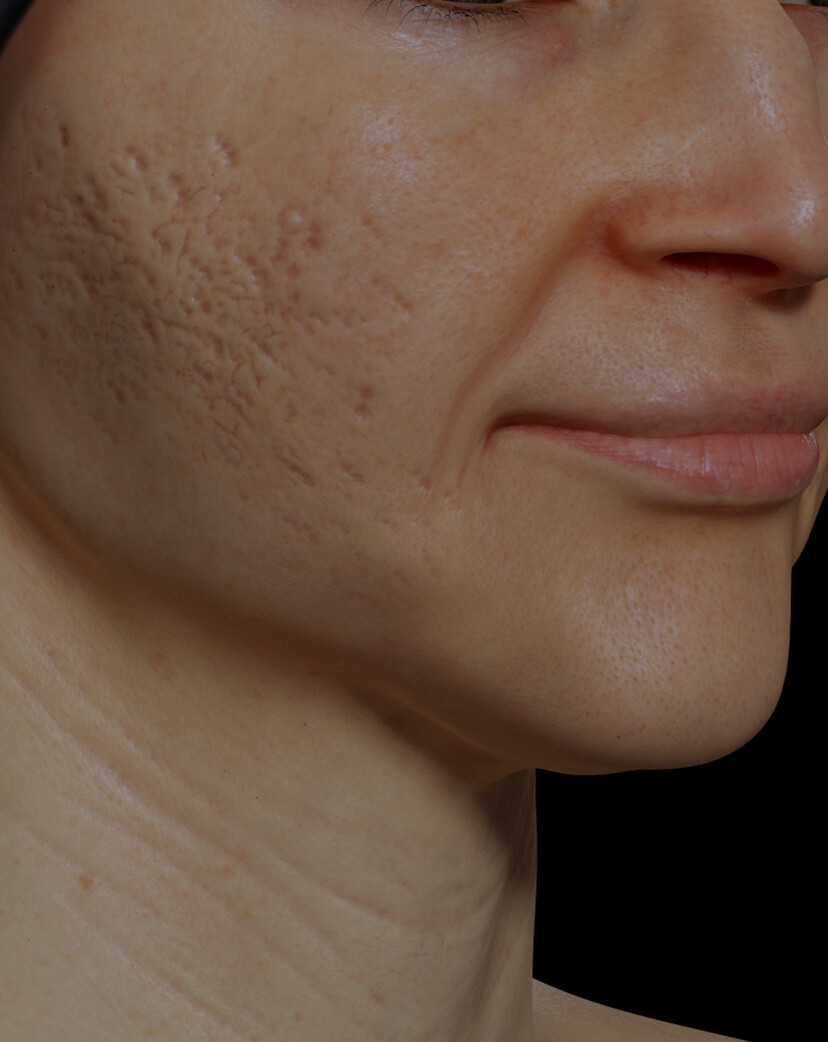 Clinique Chloé female patient with acne scars on the face getting treated with the fractional laser