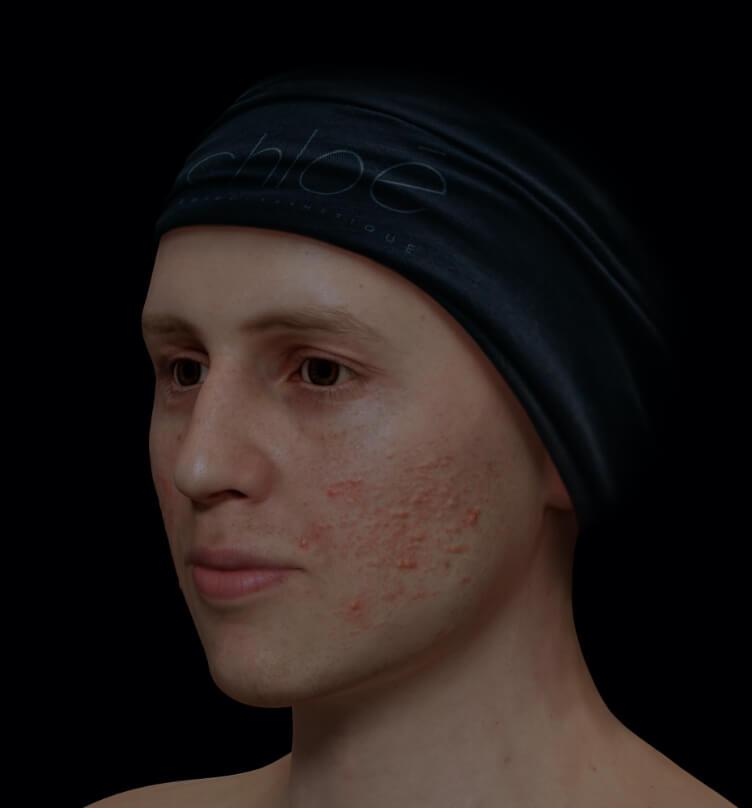 Patient de la Clinique Chloé présentant de l'acné active sur le visage