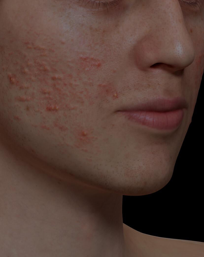 Patient de la Clinique Chloé souffrant d'acné active sur le visage traité avec le laser Fotona Acné
