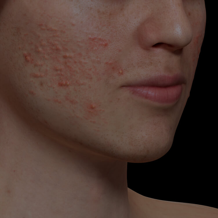 Clinique Chloé patient with active acne on the face getting treated with the Fotona Acne laser