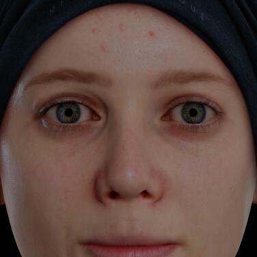 Jeune patiente de la Clinique Chloé souffrant d'acné active sur le visage traitée avec des peelings chimiques