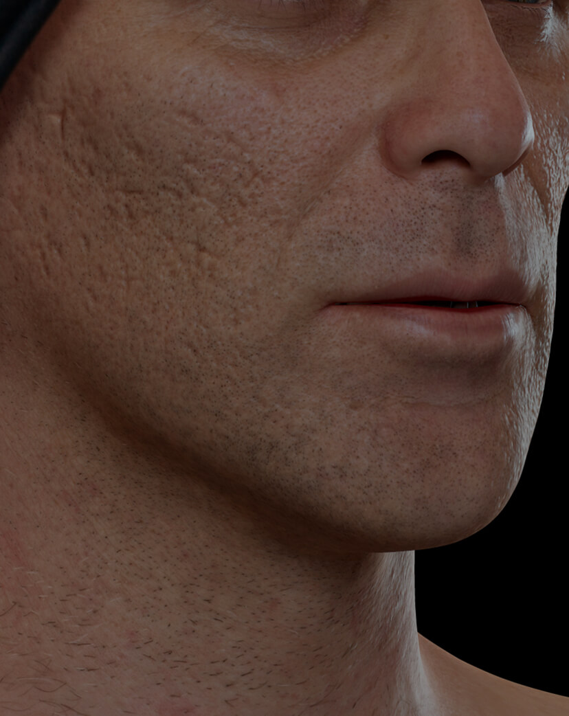 Clinique Chloé male patient with acne scars on the face getting treated with microneedling