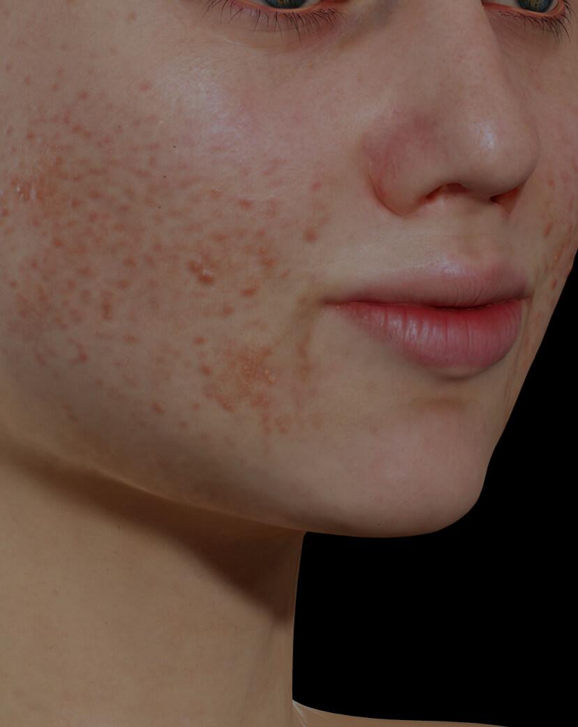 Jeune patiente de la Clinique Chloé souffrant d'acné active sur le visage traitée avec le laser à colorant pulsé Vbeam