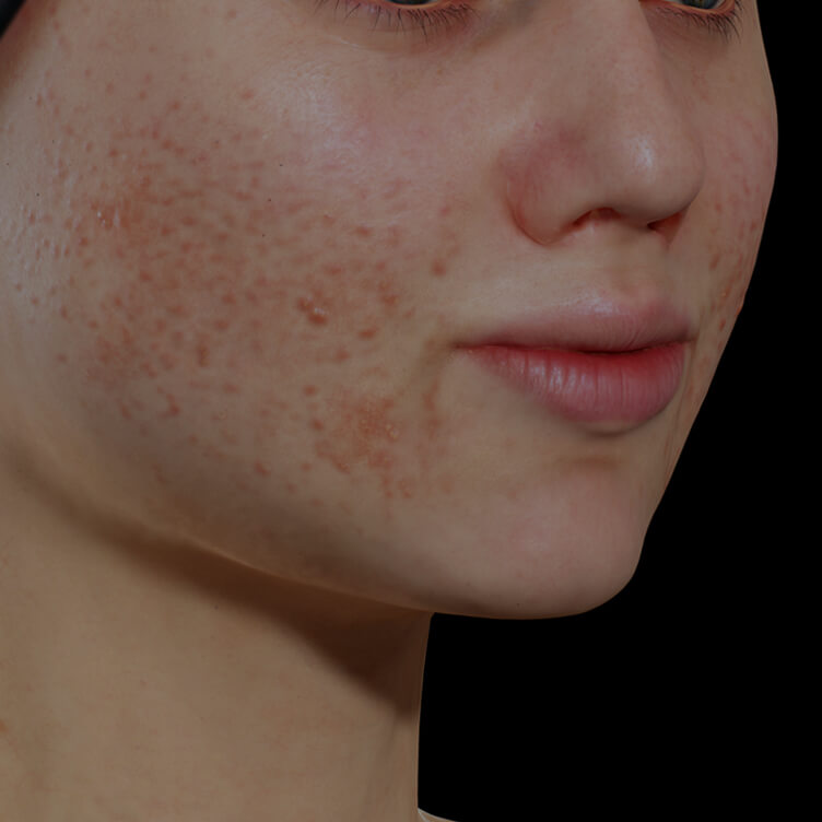 Young Clinique Chloé female patient with active acne on her face getting treated with the Vbeam pulsed dye laser