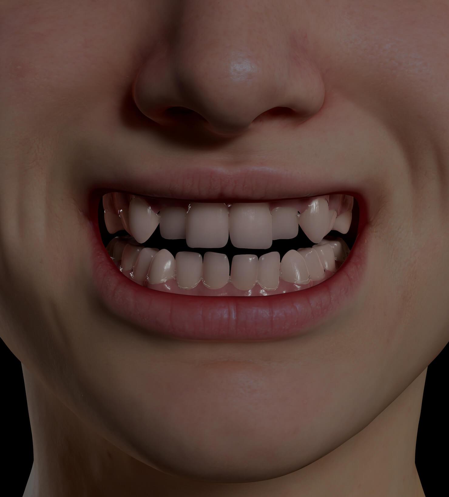 Patient de la Clinique Chloé avec les dents croches s'apprêtant à recevoir des aligneurs invisibles Invisalign