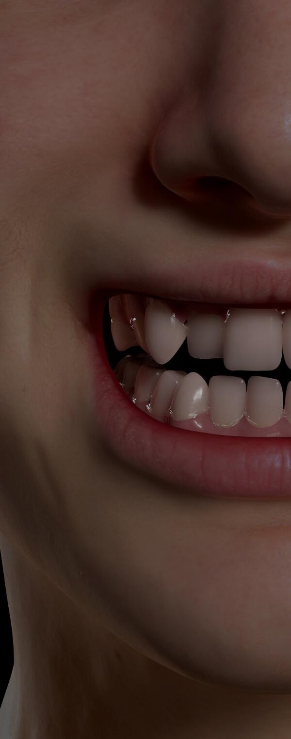 Patient de la Clinique Chloé montrant un sourire avec les dents croches