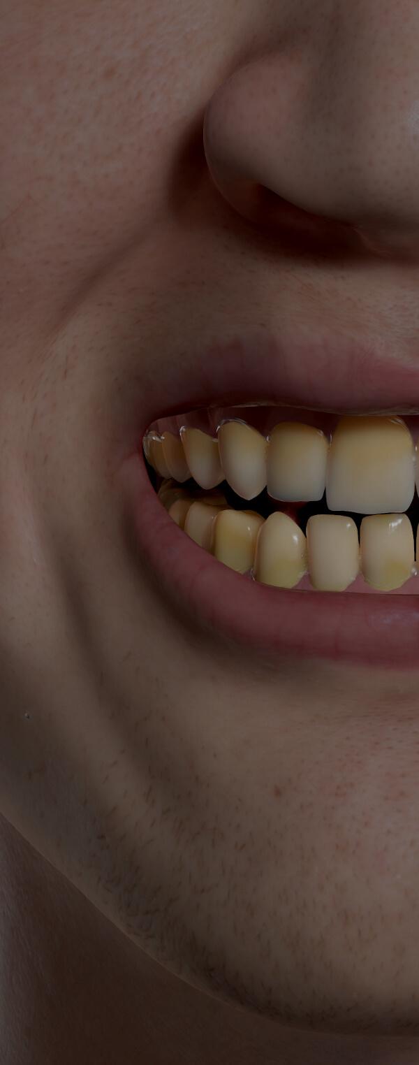 Patient de la Clinique Chloé avec des dents décolorées, jaunes