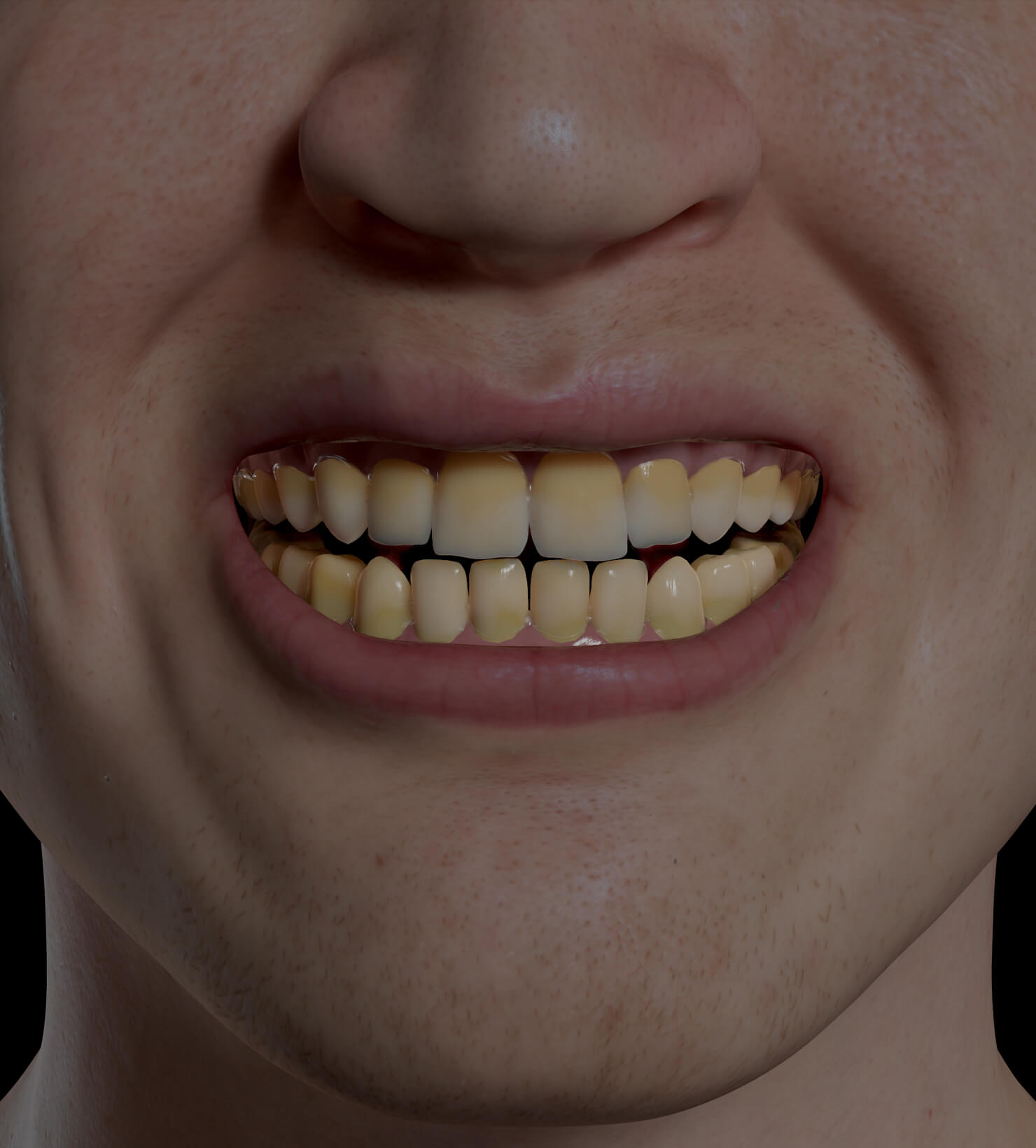 Patient de la Clinique Chloé présentant une décoloration des dents traité pour un blanchiment dentaire professionnel