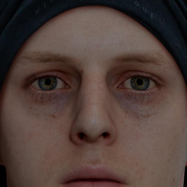 Patient de la Clinique Chloé ayant des cernes sous les yeux traité avec des injections d'agents de comblement