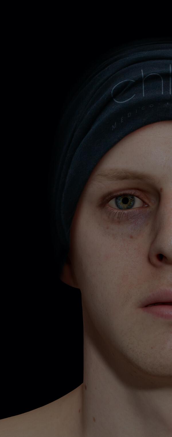 Patient de la Clinique Chloé montrant des cernes creux et colorés sous les yeux