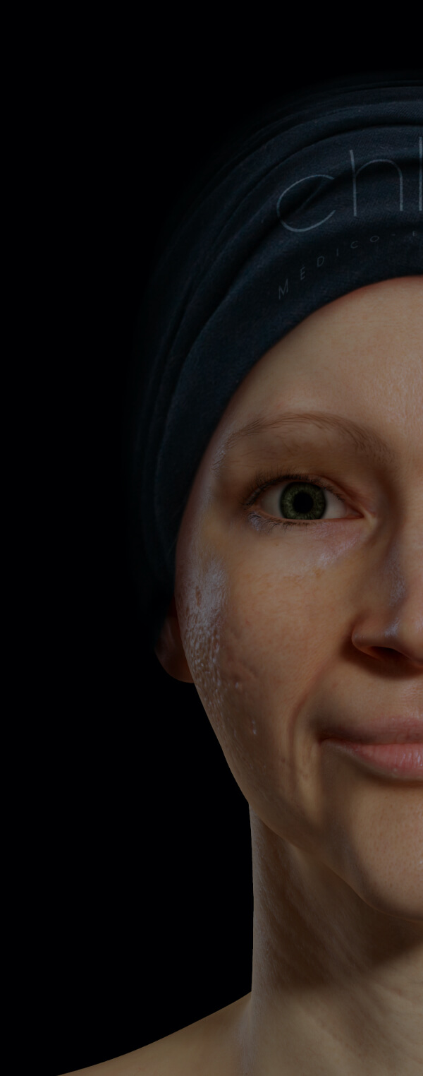 Patiente de la Clinique Chloé ayant des cicatrices d'acné sur le visage