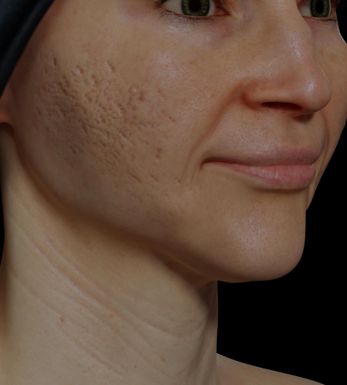 Patiente de la Clinique Chloé aux prises avec des cicatrices d'acné traitée avec le laser fractionné