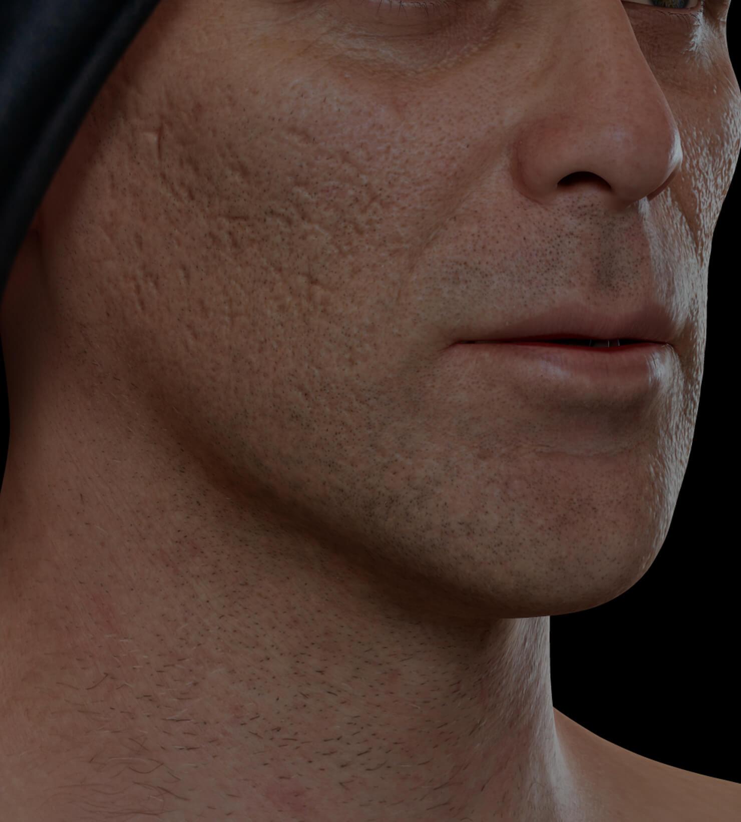 Patient de la Clinique Chloé aux prises avec des cicatrices d'acné traité avec du microneedling