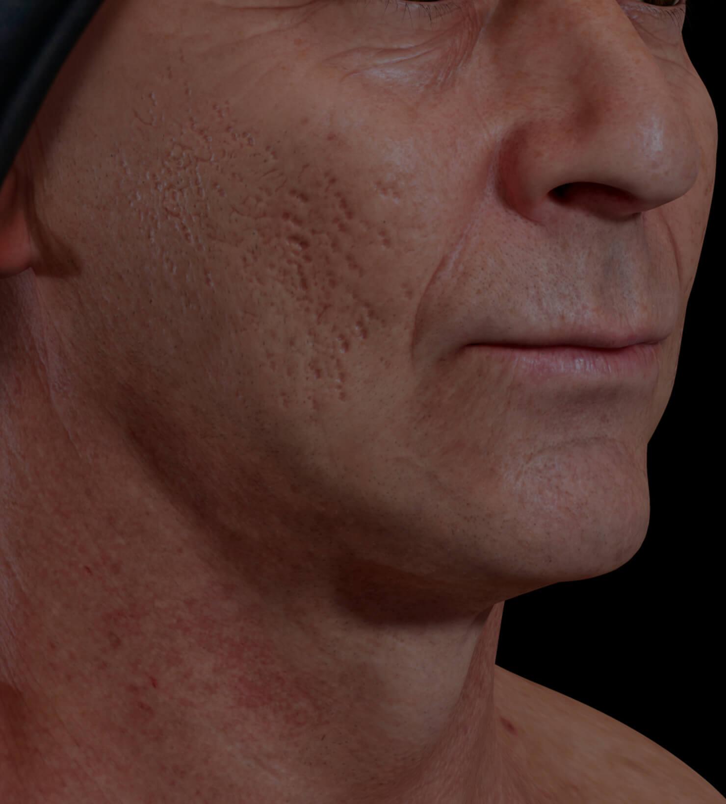 Patient de la Clinique Chloé aux prises avec des cicatrices d'acné traité avec la radiofréquence fractionnée Venus Viva