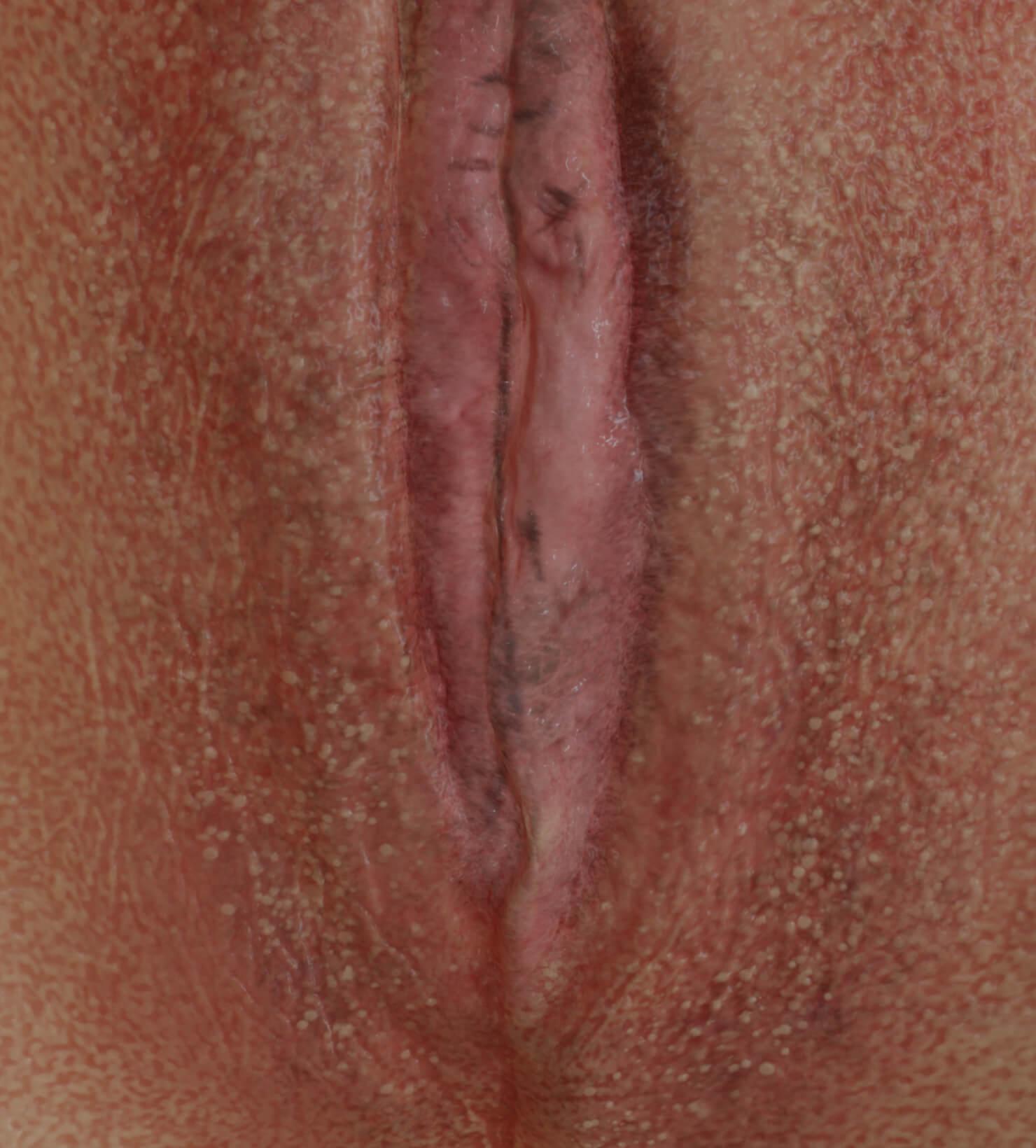 Patiente de la Clinique Chloé avec atrophie vaginale à être traitée avec des injections d'agents de comblement