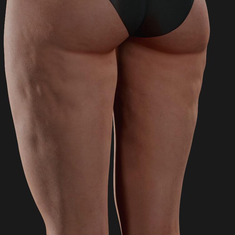 Cuisses d'une patiente de la Clinique Chloé montrant de la cellulite, à être traitées avec le Profound RF microneedling
