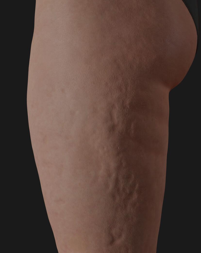 Cuisses d'une patiente de la Clinique Chloé montrant de la cellulite, à être traitées avec le laser Tight Sculpting