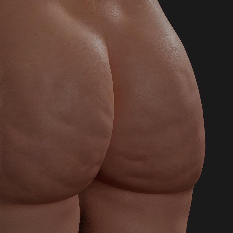 Fesses d'une patiente de la Clinique Chloé montrant de la cellulite, à être traitées avec la radiofréquence Venus Legacy
