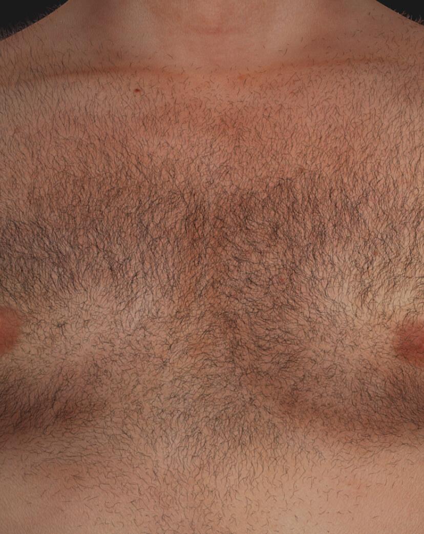Poitrine d'un patient de la Clinique Chloé avec des poils indésirables, à être traitée avec l'épilation permanente au laser