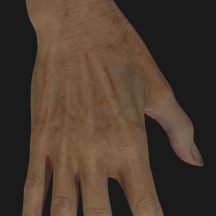 Main vieillissante d'une patiente de la Clinique Chloé à être traitée avec des injections d'agents de comblement