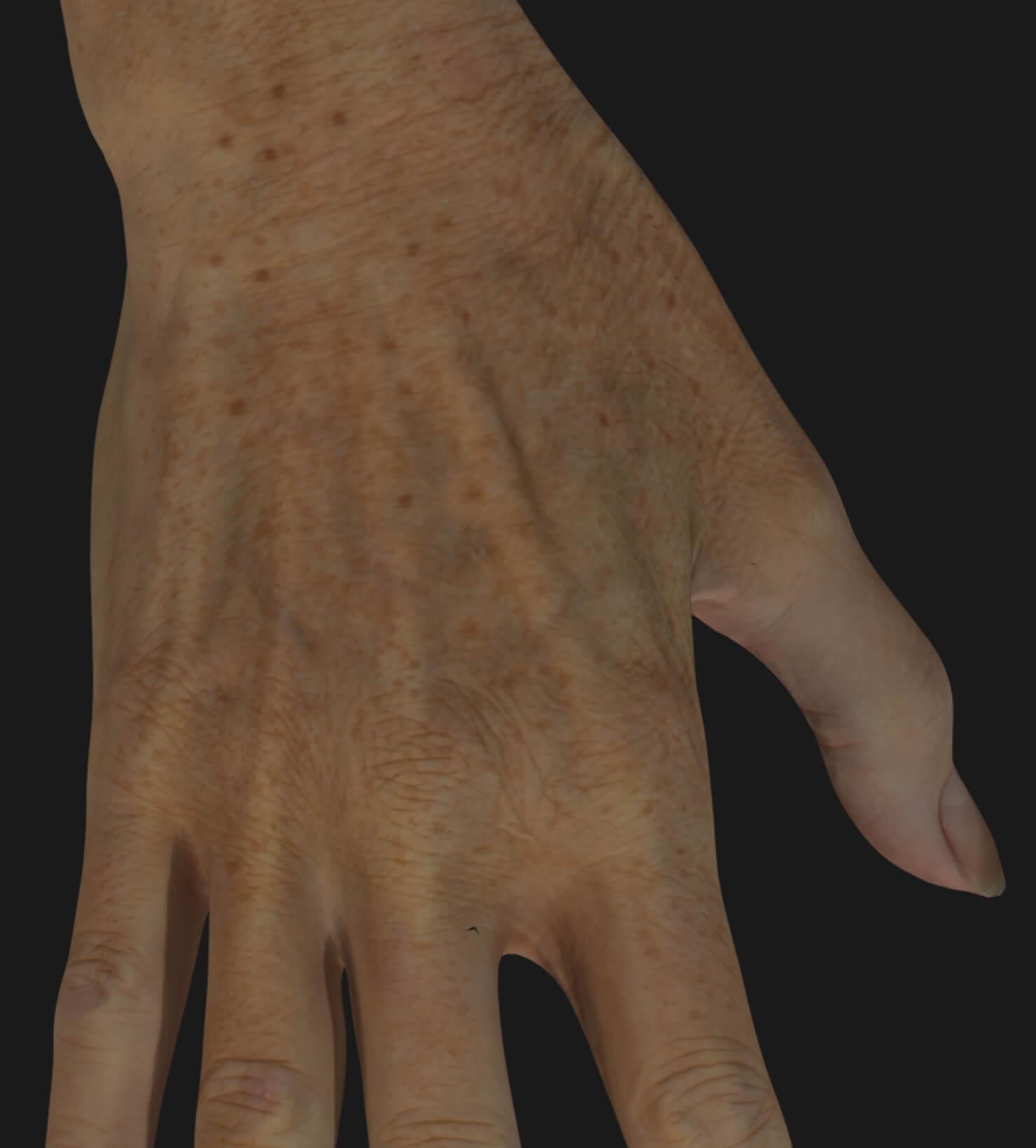 Main d'une patiente de la Clinique Chloé à être traitée avec le photorajeunissement IPL