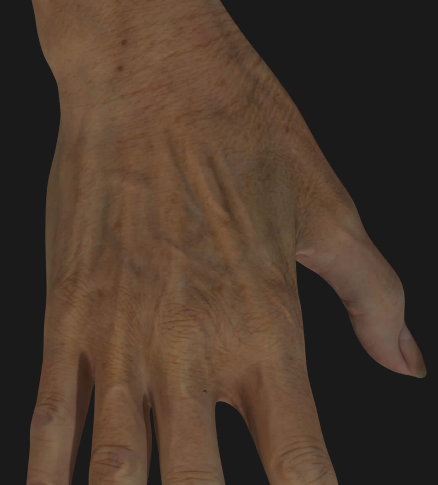 Main vieillissante d'une patiente de la Clinique Chloé à être traitée avec le photorajeunissement IPL