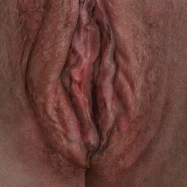 Patiente de la Clinique Chloé avec syndrome de relâchement vaginal à être traitée avec le laser IntimaLase