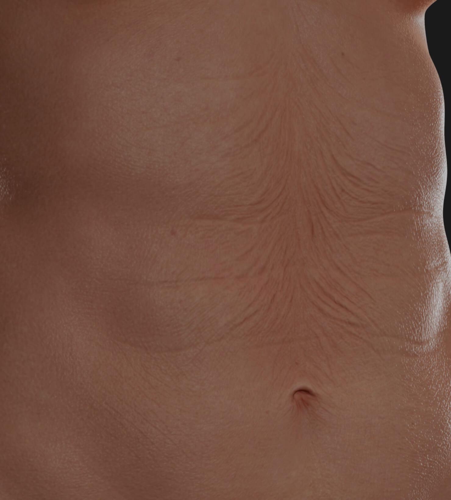 Abdomen avec relâchement cutané à être traité à la Clinique Chloé avec le laser Tight Sculpting pour du raffermissement