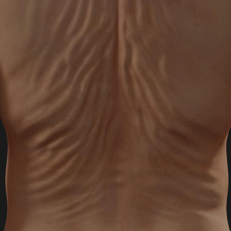 Dos d'une patiente de la Clinique Chloé montrant un relâchement cutané à être traité avec la radiofréquence Venus Legacy