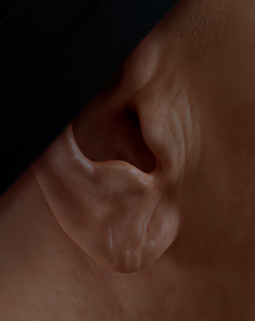 Patiente de la Clinique Chloé avec des lobes d'oreilles relâchés traitée avec des injections d'agents de comblement