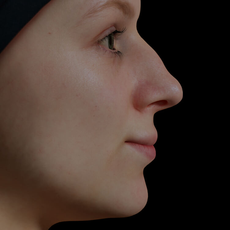 Patiente de la Clinique Chloé avec un nez présentant des bosses traitée avec des injections d'agents de comblement